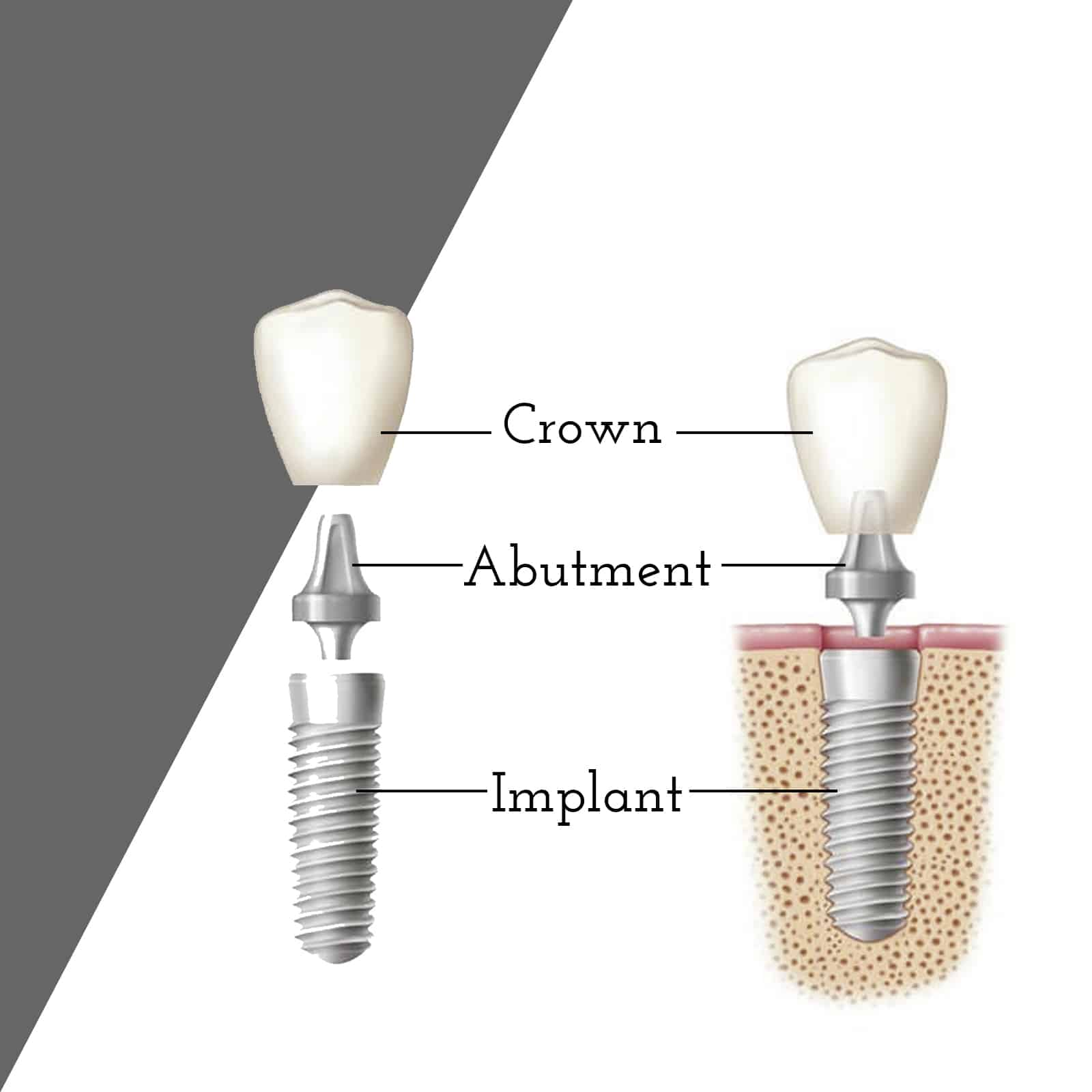 Cranberry Dental Studio | Dental Implants