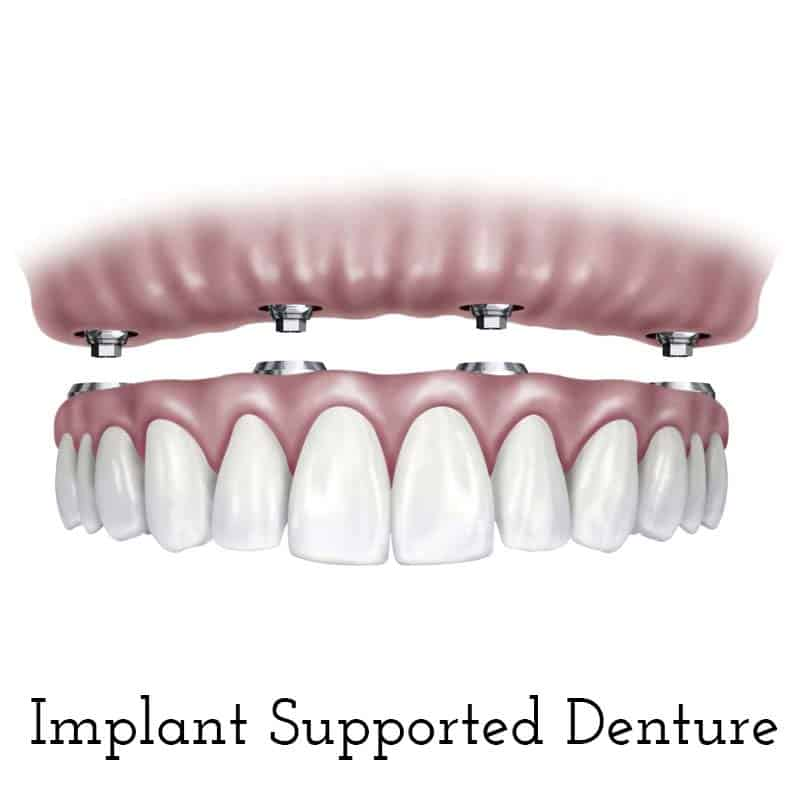 Cranberry Dental Studio | Implant Supported Denture