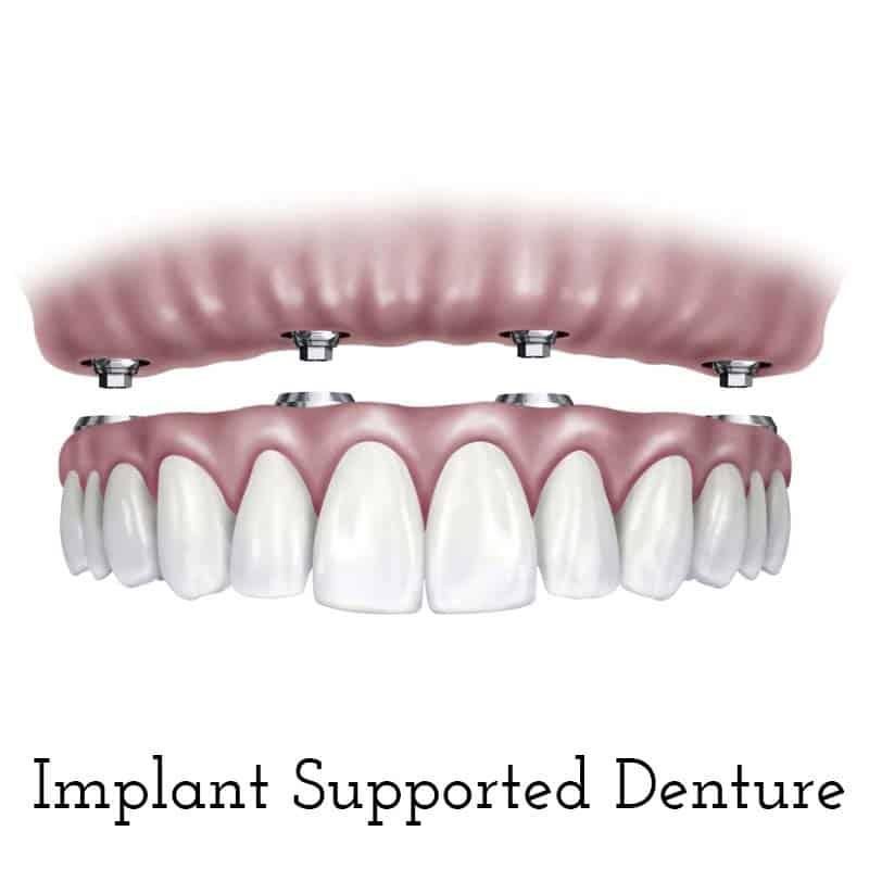 Cranberry Dental Studio | Implant Supported Denture