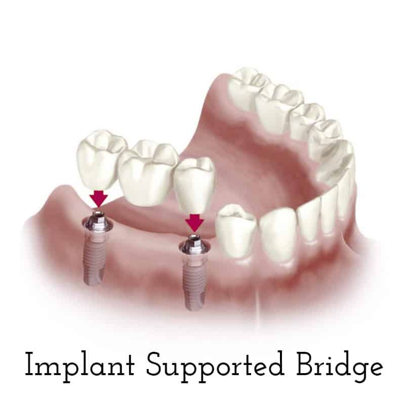 Cranberry Dental Studio | Implant Supported Bridge