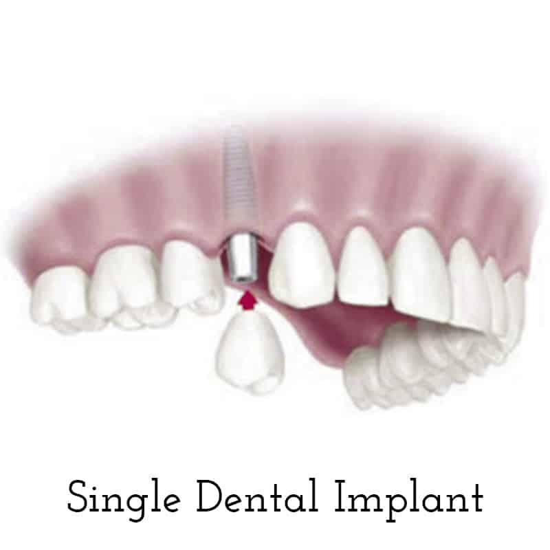 Cranberry Dental Studio | Single Dental Implant