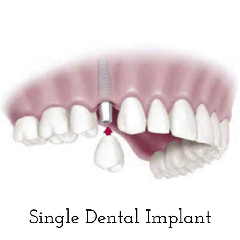 Cranberry Dental Studio | Single Dental Implant