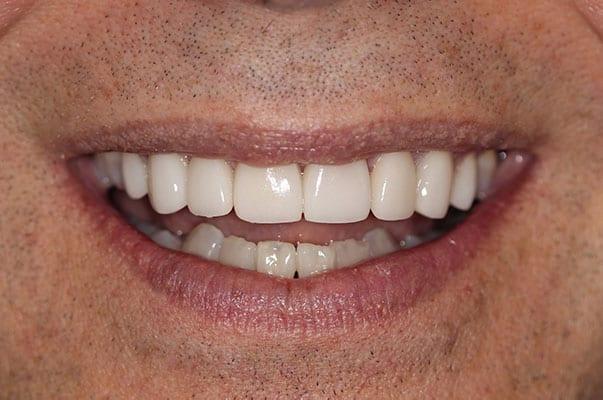 cranberry dental after photo