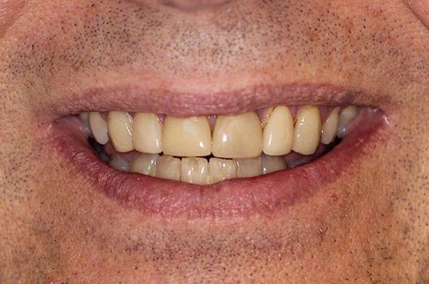cranberry dental before photo