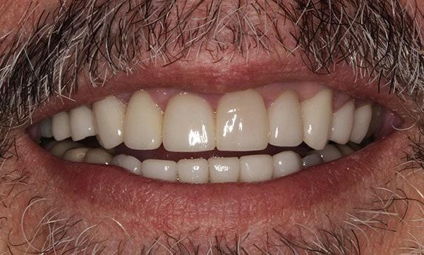 veneer patient after image