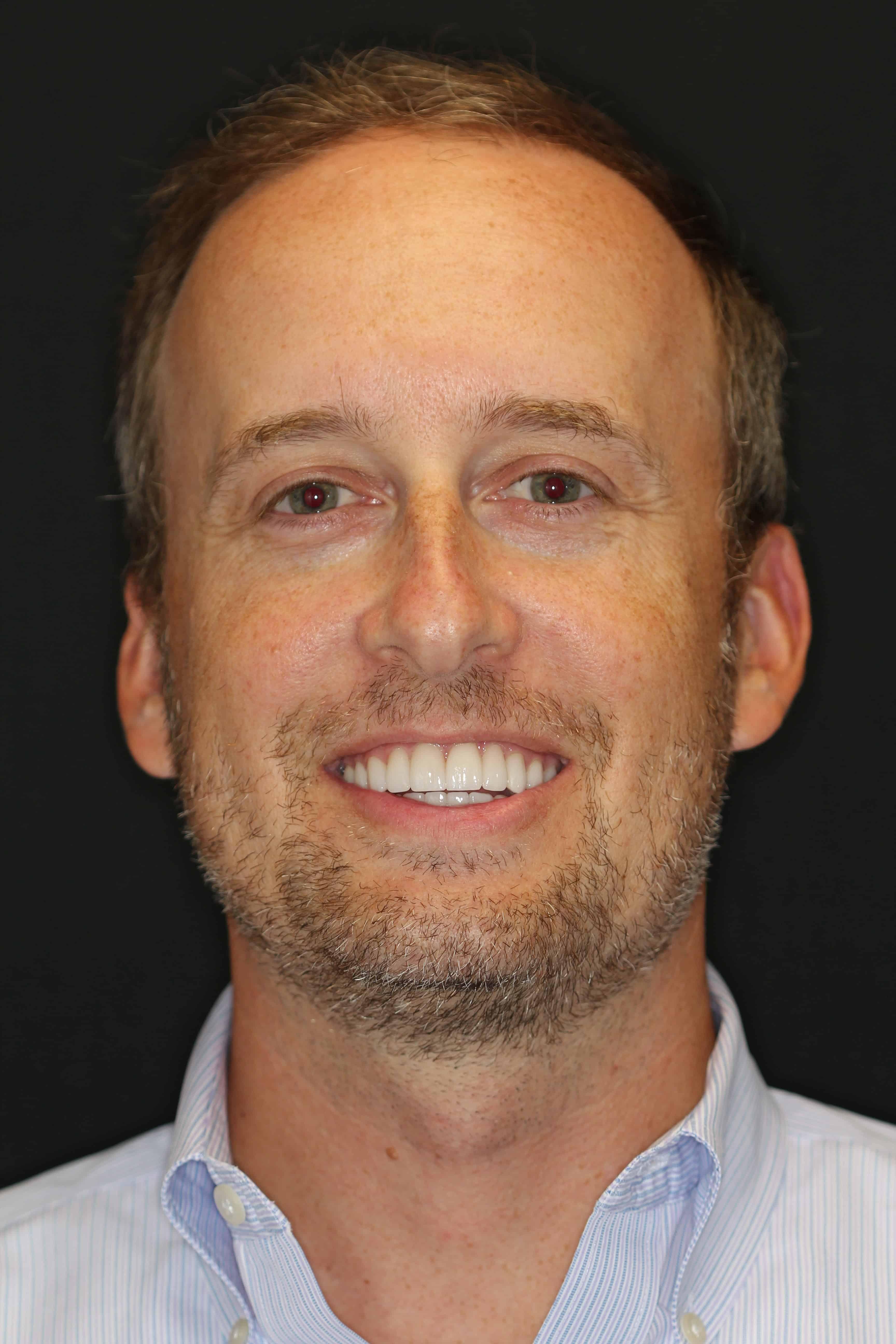 patient portrait after whitening procedure