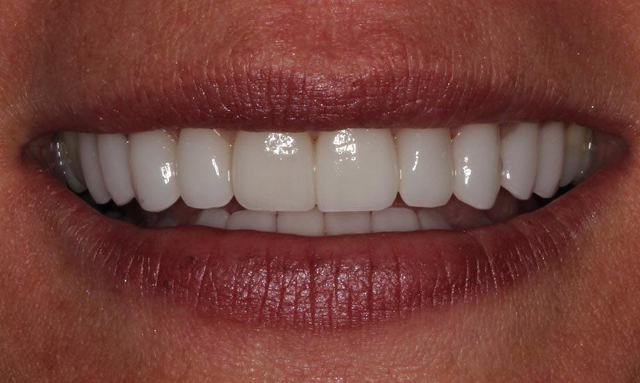 after cranberry dental