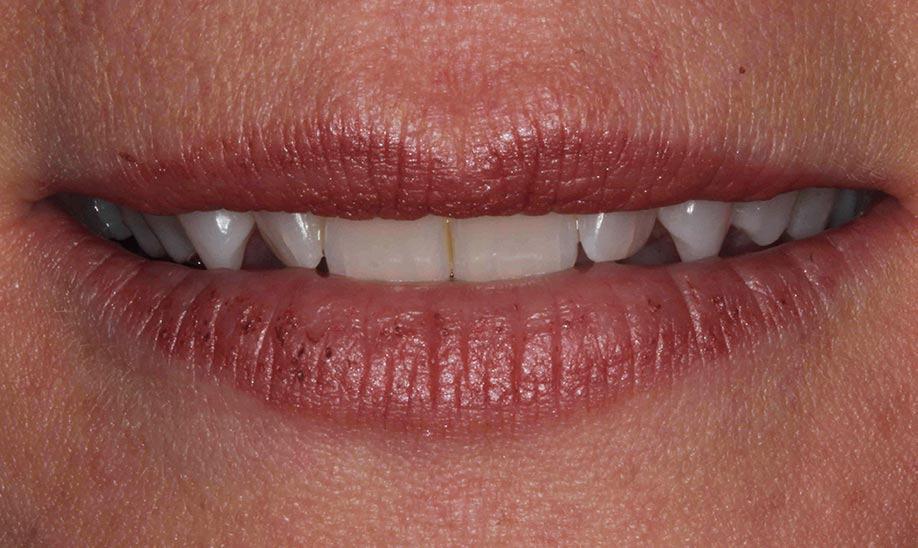 before cranberry dental studio