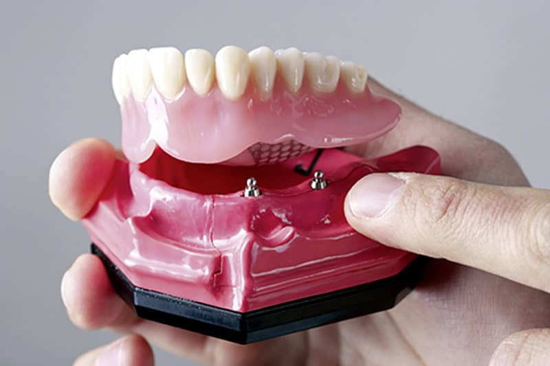 Cranberry Dental Studio | Implant-Supported Dentures