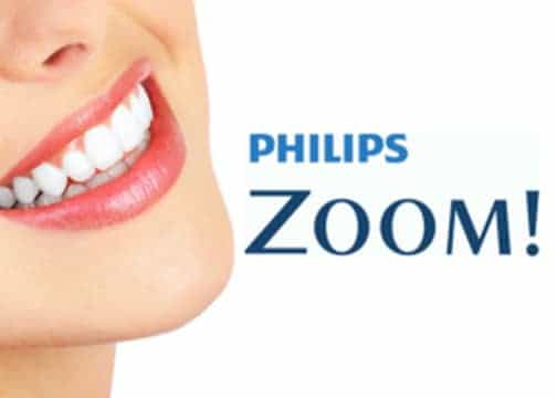 Zoom! Whitening | Cranberry Dental Studio