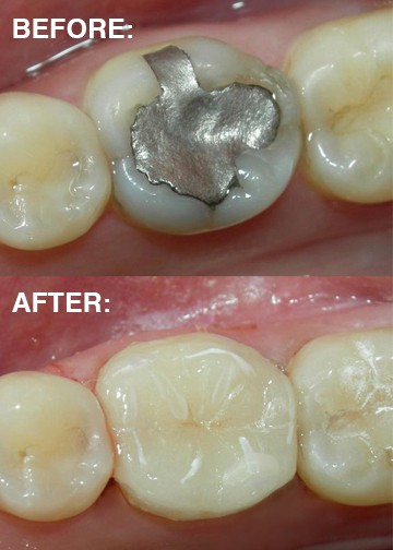 Before and after fillings photos