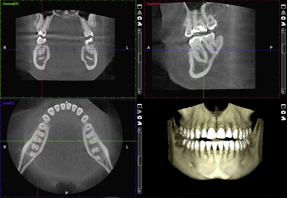 Cranberry Dental Studio   CBCT scan