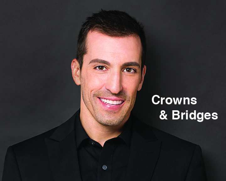 Crowns & Bridges | Cranberry Dental Studio