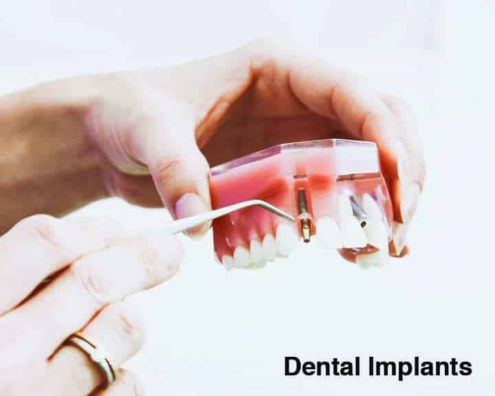 Dental Implants | Cranberry Dental Studio