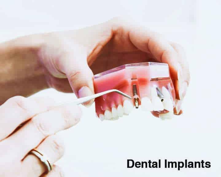 Dental Implants | Cranberry Dental Studio