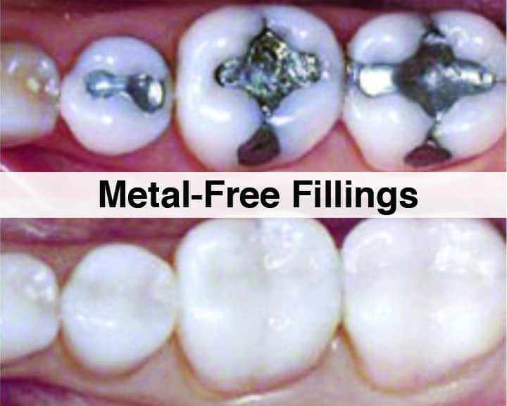 silver filling and composite filling