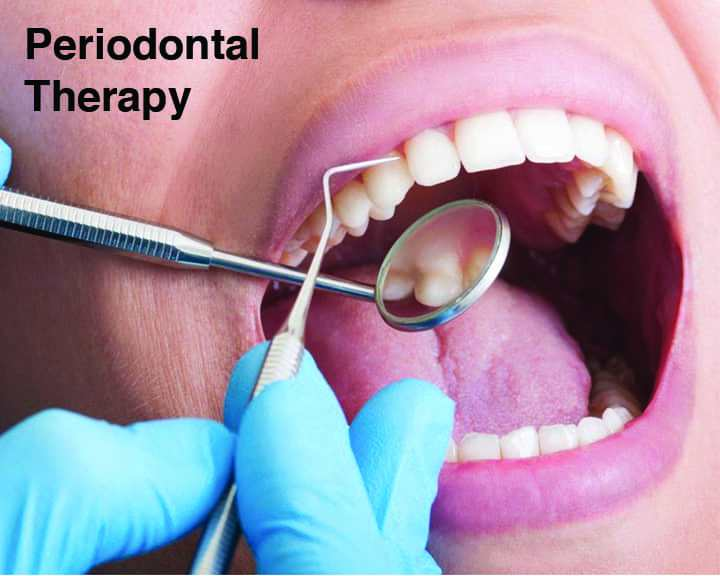 Periodontal Therapy | Cranberry Dental Studio
