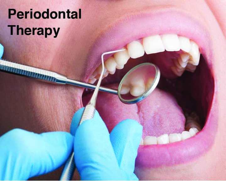 Periodontal Therapy | Cranberry Dental Studio
