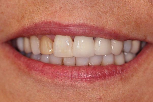 teeth whitening before photo