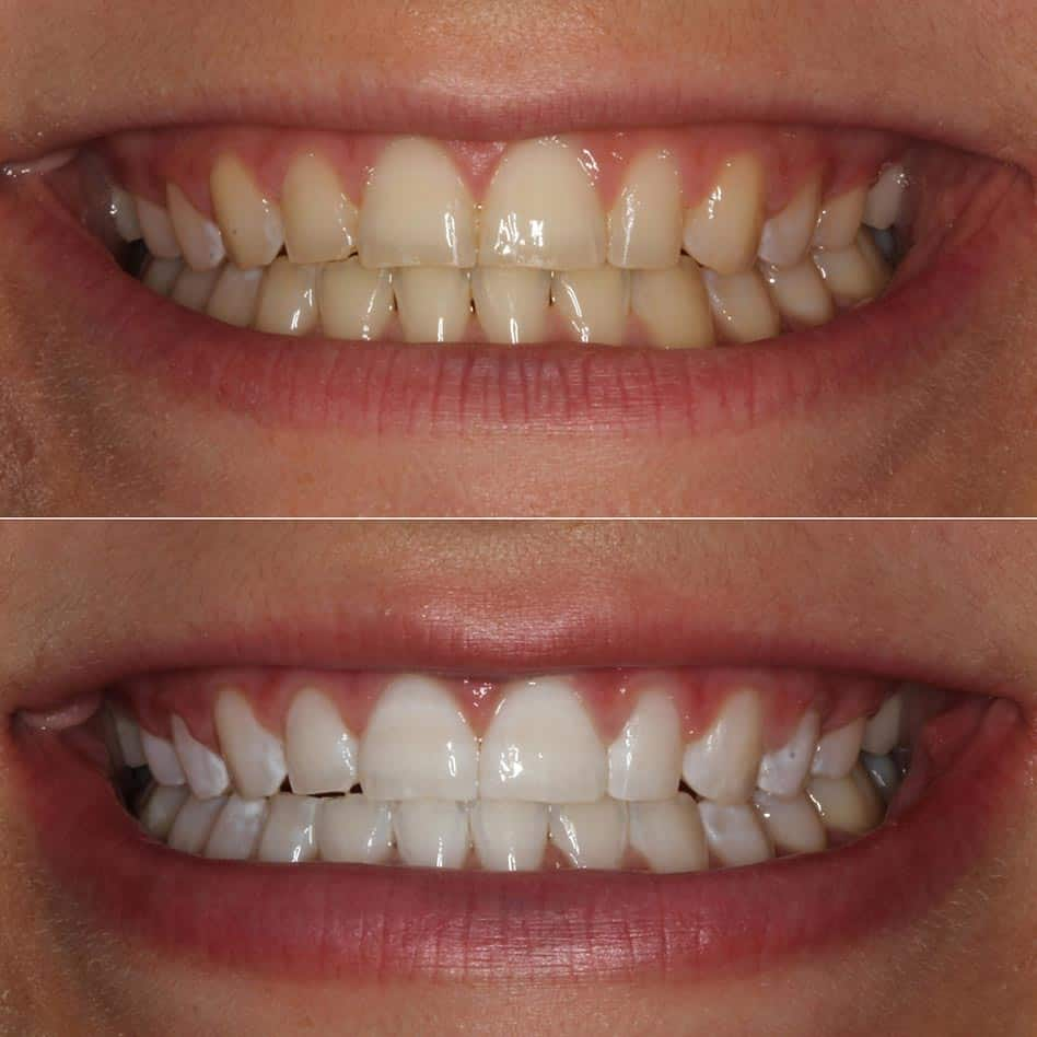 whitening before and after shot