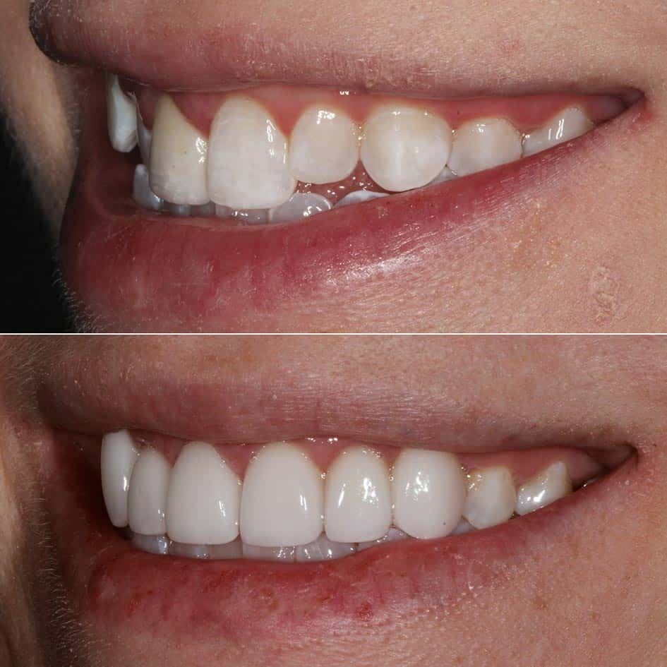 veneers before and after shot