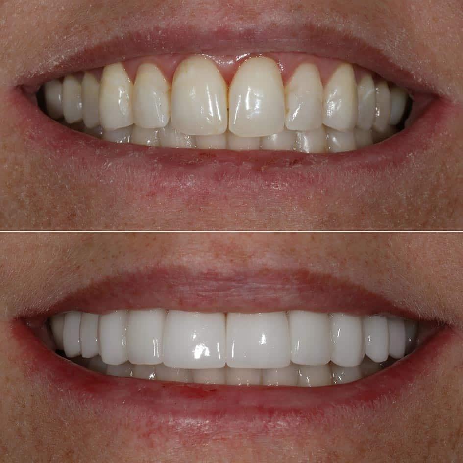 Porcelain Veneers - Cranberry Dental Studio