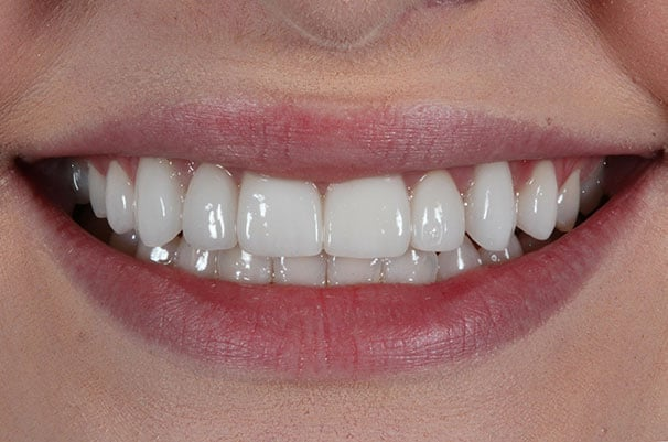 close-up after whitening treatment