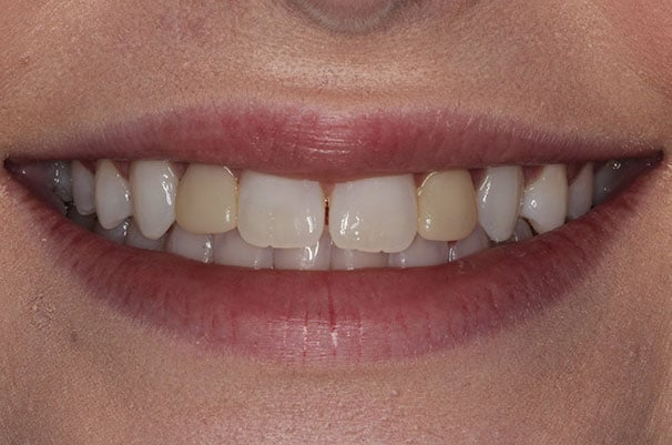 close-up before whitening treatment