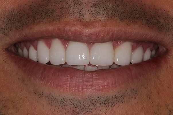 after smile shot by cranberry dental studio