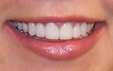 after smile from cranberry dental studio