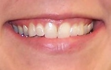 before smile from cranberry dental studio
