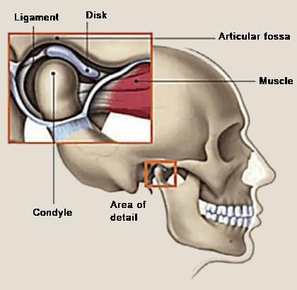 graphic showing explaining tMJ