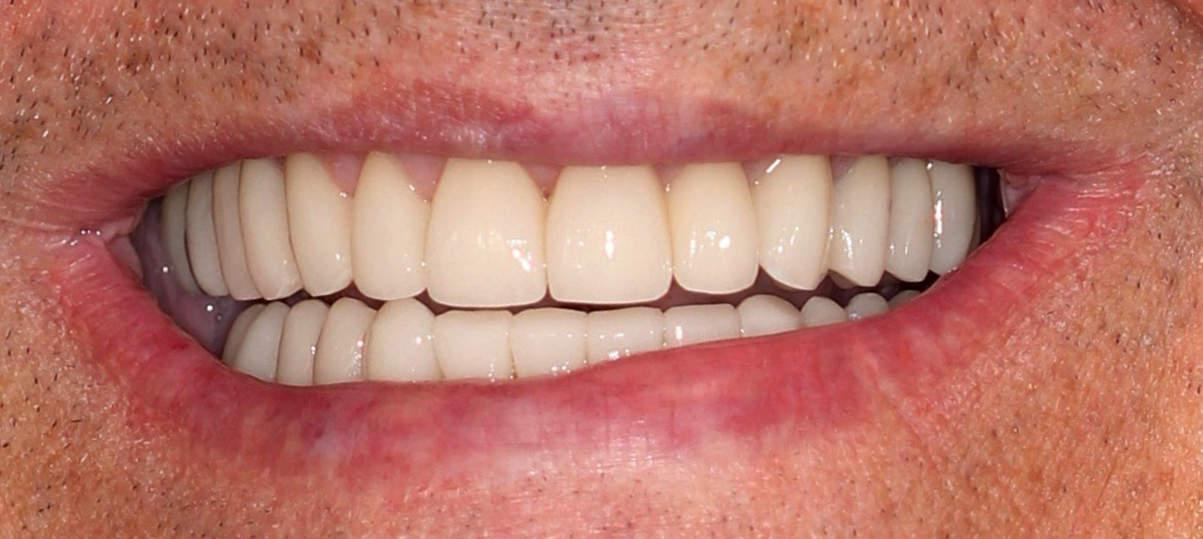 Close-up after dental work by Cranberry Dental Studio