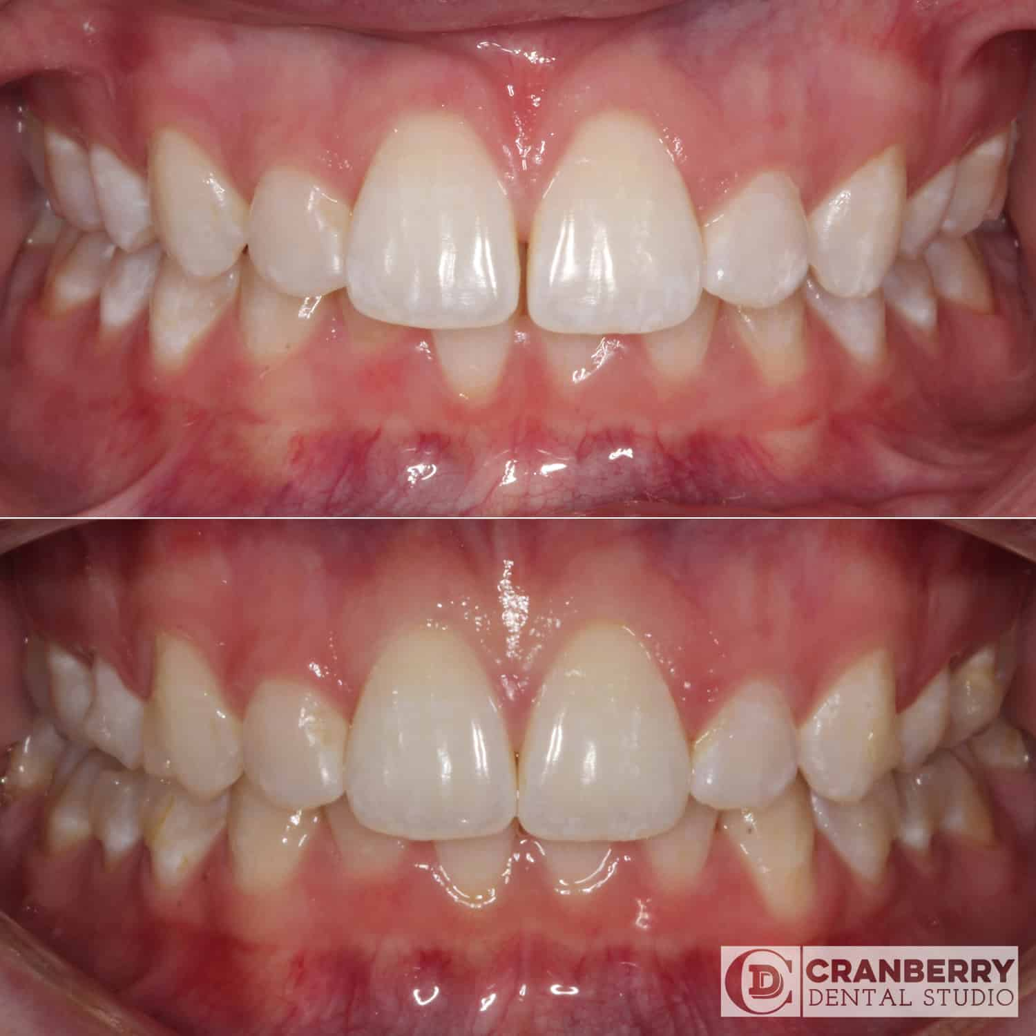 Invisalign treatment before and after by Cranberry Dental Studio