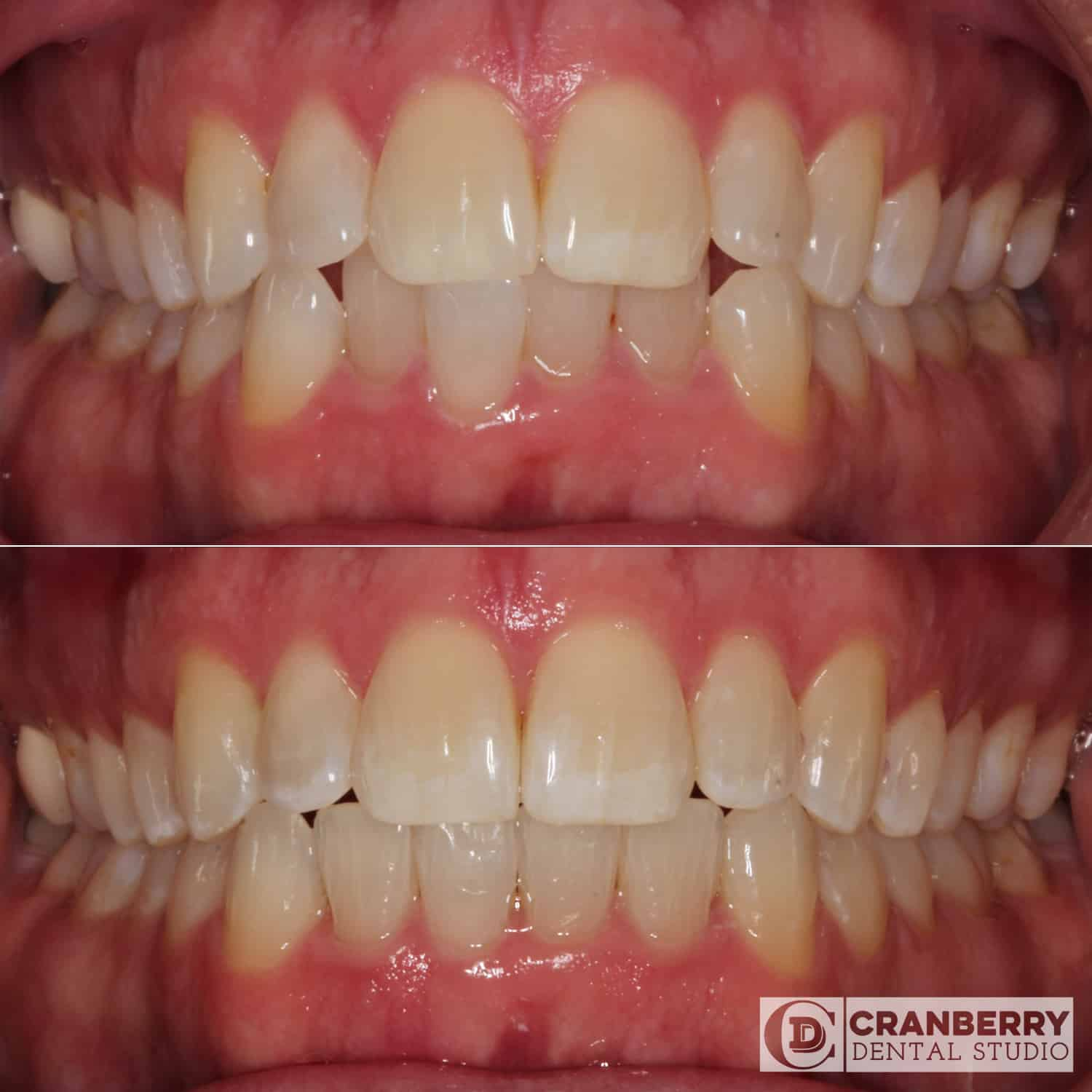 clear aligners before and after by Cranberry Dental Studio