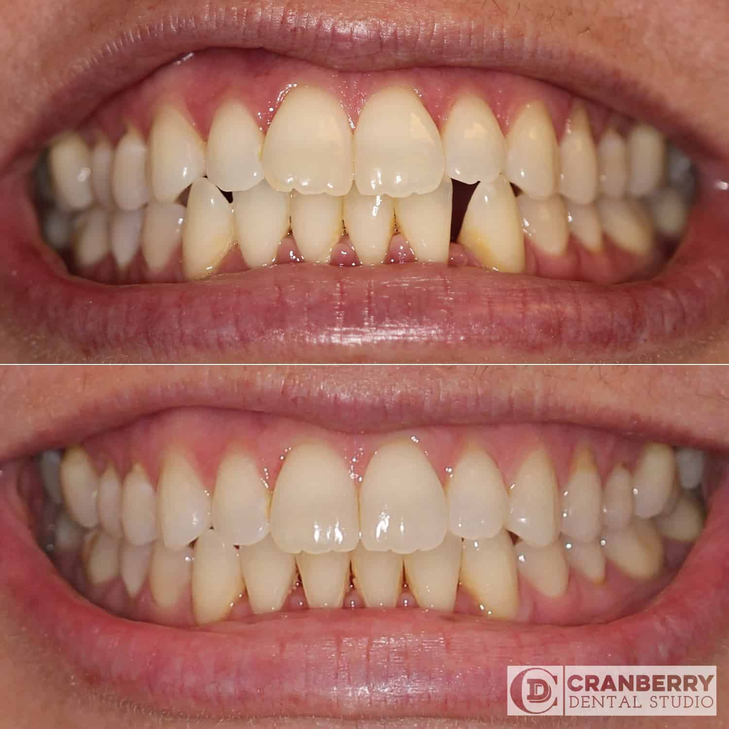 Invisalign before and after by Cranberry Dental Studio