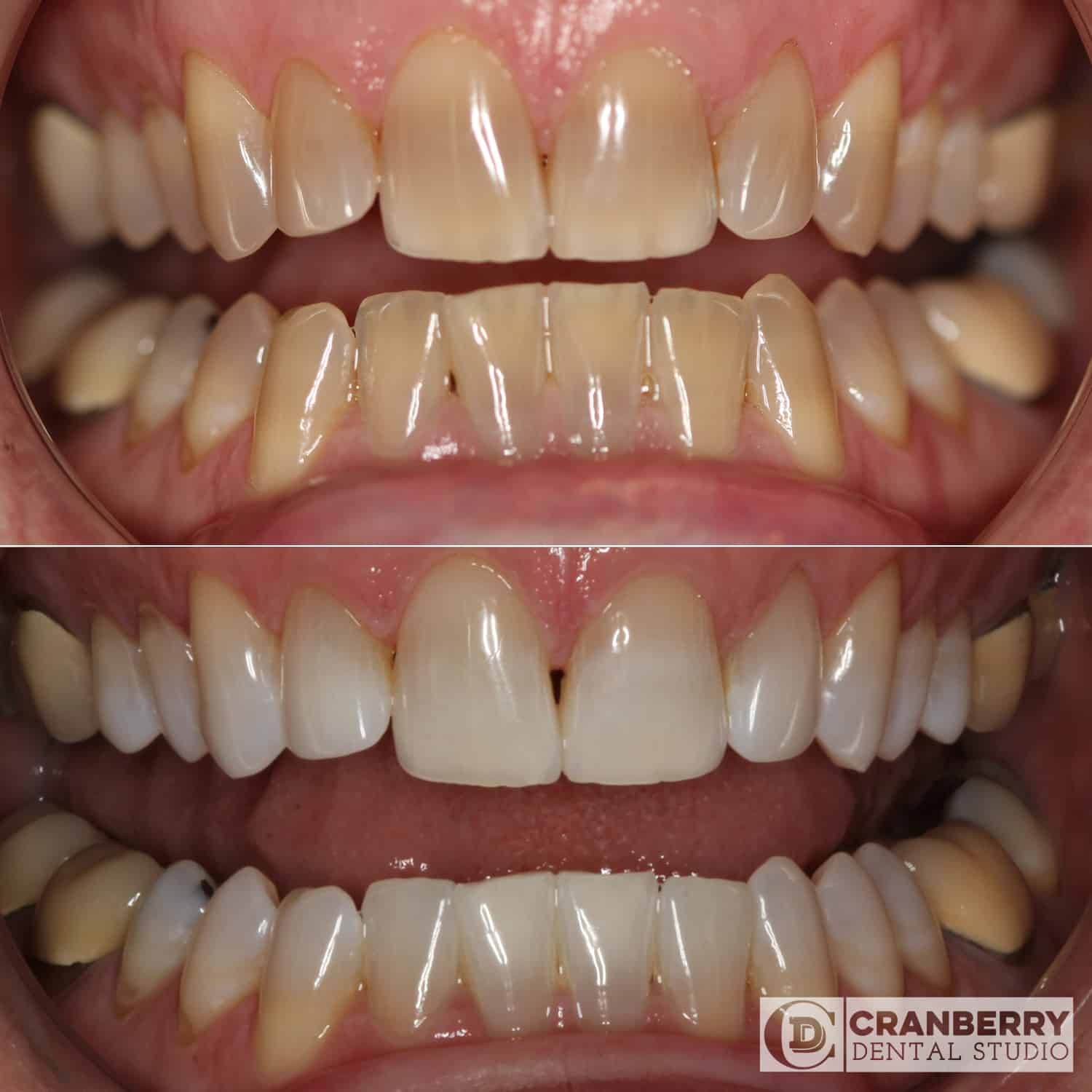 whitening before and after treatment picture
