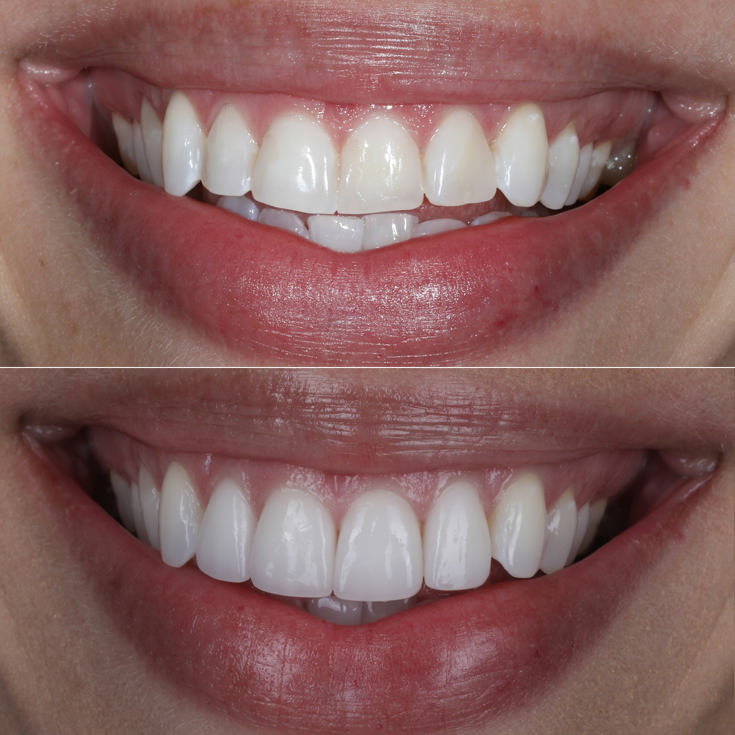 Maria Veneers Before and After
